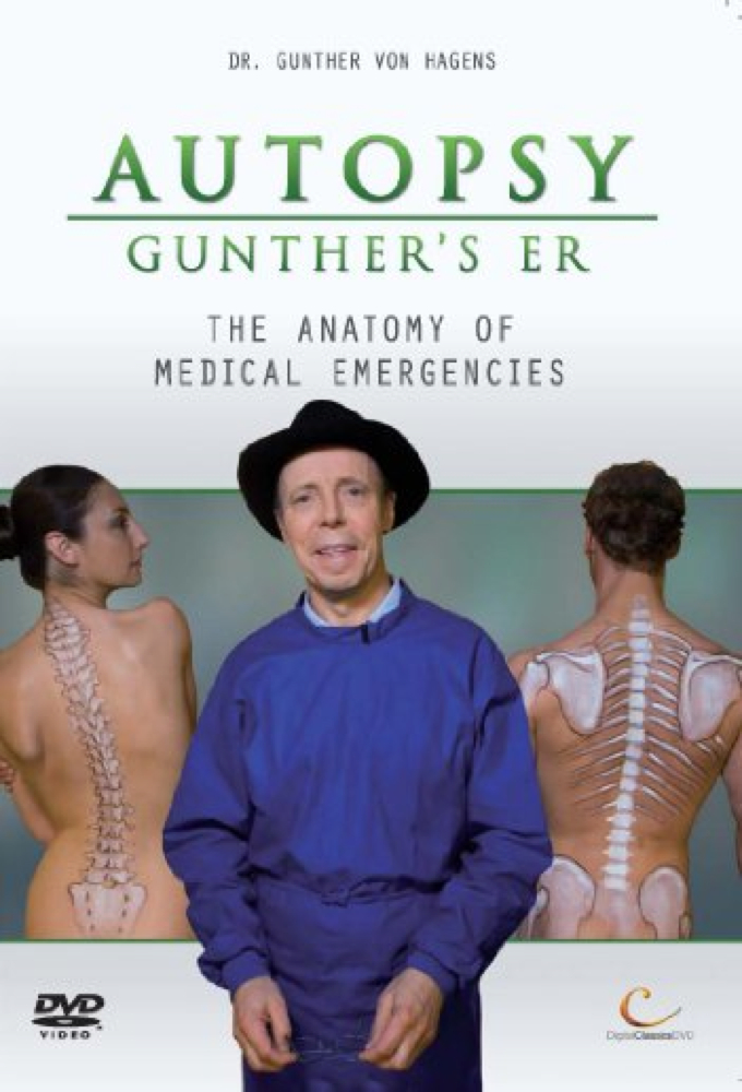 Autopsy Emergency Room Dvd